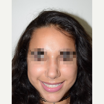 18-24 year old woman treated with Rhinoplasty after 3337938