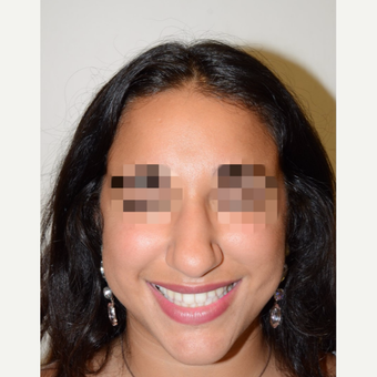18-24 year old woman treated with Rhinoplasty before 3337938
