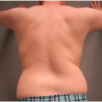 45-54 year old man treated with Liposuction 1674923