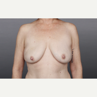 55-64 year old woman treated with Breast Implant Removal after 2936872