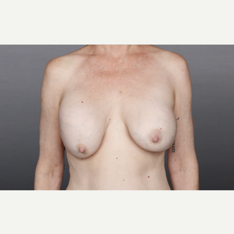 55-64 year old woman treated with Breast Implant Removal before 2936872
