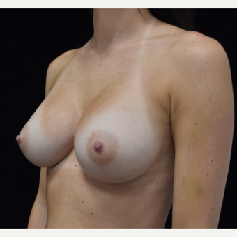 25-34 year old woman treated with Breast Augmentation after 3305092