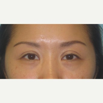 35-44 year old woman treated with Ptosis Surgery before 2438640