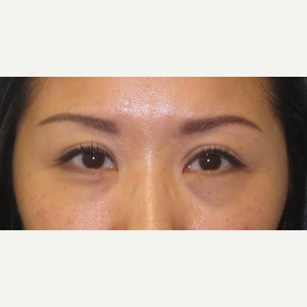 35-44 year old woman treated with Ptosis Surgery after 2438640