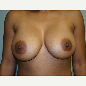 Breast Augmentation after 3560789