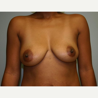 Breast Augmentation before 3560789