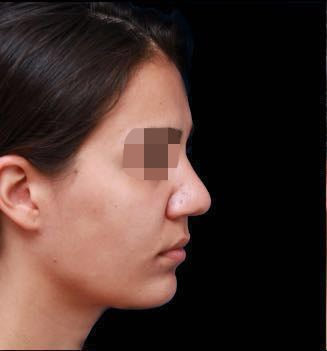 24-33 year old woman treated with Rhinoplasty before 3270017