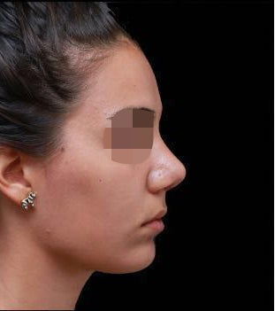 24-33 year old woman treated with Rhinoplasty after 3270017
