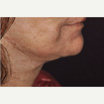 Neck Lift after 3162821