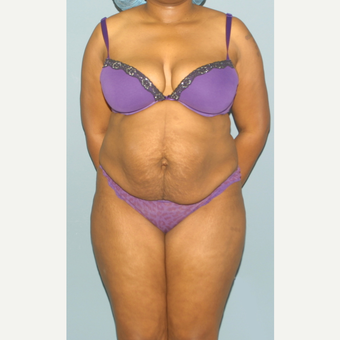 25-34 year old woman treated with Tummy Tuck before 3559320