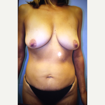 45-54 year old woman treated with Mommy Makeover before 3384522