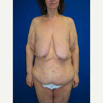 35-44 year old woman treated with Body Lift before 2257093