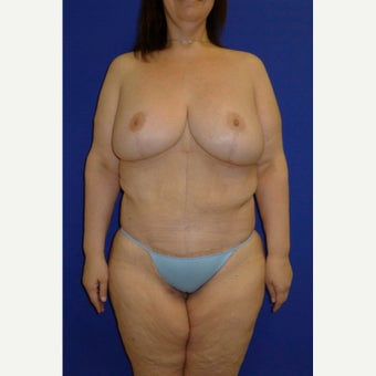 35-44 year old woman treated with Body Lift after 2257093