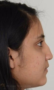18-24 year old woman treated with Rhinoplasty before 3264327