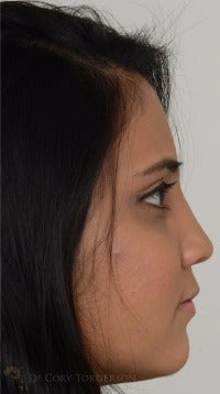 18-24 year old woman treated with Rhinoplasty after 3264327