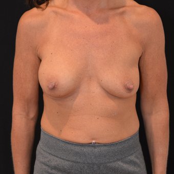 45-54 year old woman ; breast implant exchange with silicone implants before 3604318