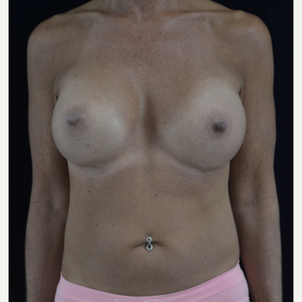 45-54 year old woman ; breast implant exchange with silicone implants after 3604318