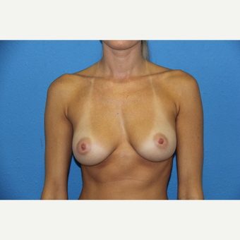 25-34 year old woman treated with Breast Augmentation before 3168508