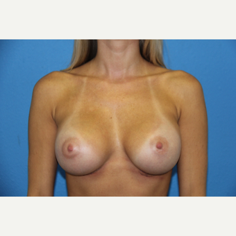 25-34 year old woman treated with Breast Augmentation after 3168508