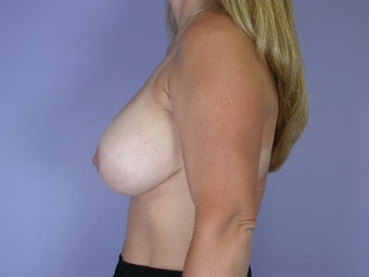 41 yr old breast implant revision before 1060872