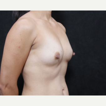 35-44 year old woman treated with Sientra Breast Implants before 2944688