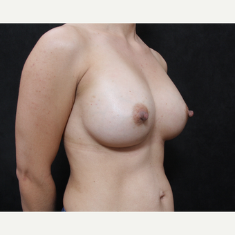 35-44 year old woman treated with Sientra Breast Implants after 2944688