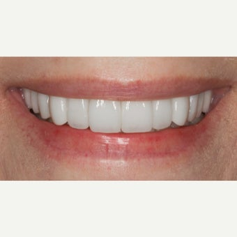 65-74 year old woman treated with Porcelain Veneers after 2370024