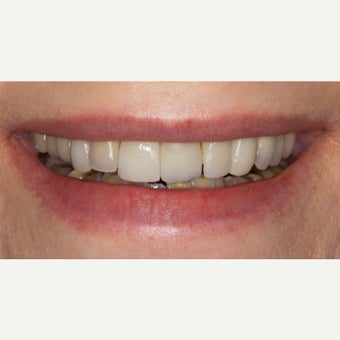 65-74 year old woman treated with Porcelain Veneers before 2370024