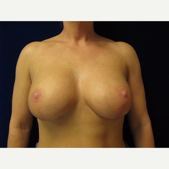 35-44 year old woman treated with Breast Lift with Implants after 3718369