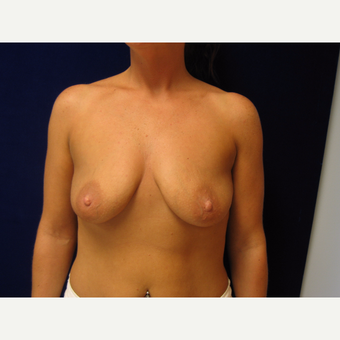 35-44 year old woman treated with Breast Lift with Implants before 3718369