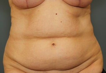 55-64 year old woman requesting Tummy Tuck before 3031493