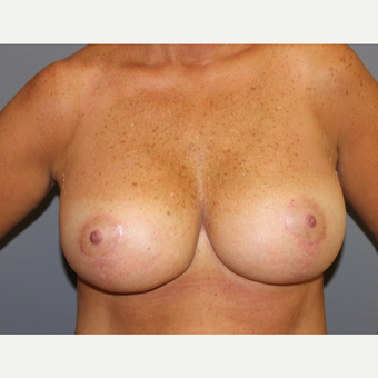 Breast Lift after 3027386