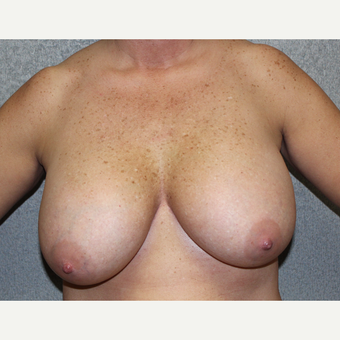 Breast Lift before 3027386