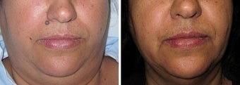 Mole Removal photos before 951874