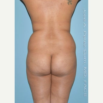 18-24 year old woman treated with Brazilian Butt Lift before 1895566