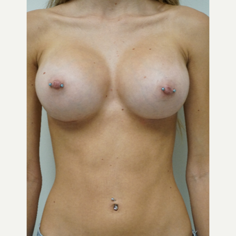 18-24 year old woman treated with Breast Augmentation after 3703108