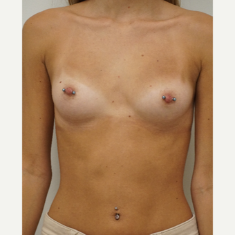 18-24 year old woman treated with Breast Augmentation before 3703108