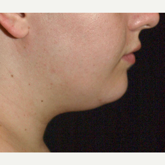 18-24 year old woman treated with Chin Liposuction before 3321432