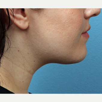 18-24 year old woman treated with Chin Liposuction after 3321432