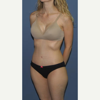 25-34 year old woman treated with Tummy Tuck after 3559203