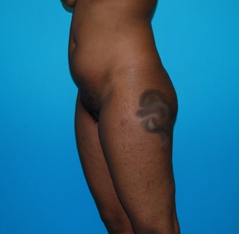 18-24 year old woman treated with Smart Lipo before 3452635