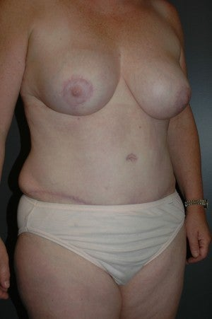 Lipoabdominoplasty, (patient had breast reduction at same time). Six month photo.