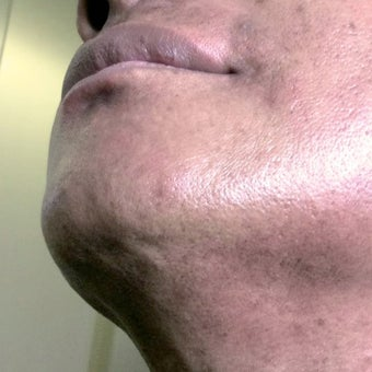 45-54 year old man treated with Electrolysis after 1749771
