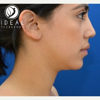 24 year old woman after laser sculpting liposuction of the chin, neck, and buccal fat removal. 1910413