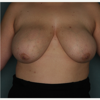 18-24 year old woman treated with Breast Reduction before 3532778