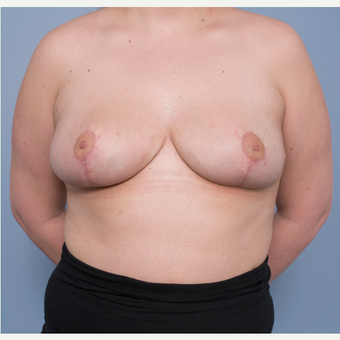 18-24 year old woman treated with Breast Reduction after 3532778