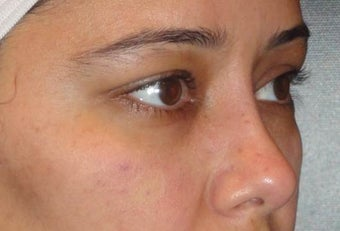 Restylane after 959471