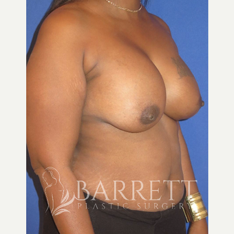 35-44 year old woman treated with Breast Reconstruction Revision before 3584846