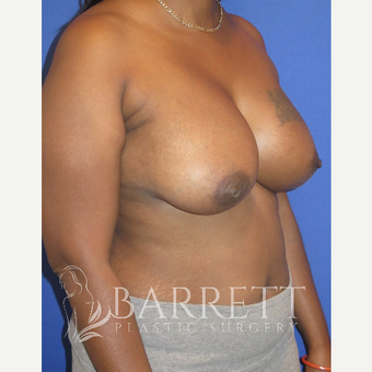 35-44 year old woman treated with Breast Reconstruction Revision after 3584846