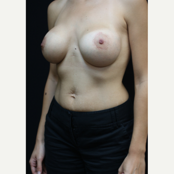 25 year old woman treated with Breast Implants after 3383237